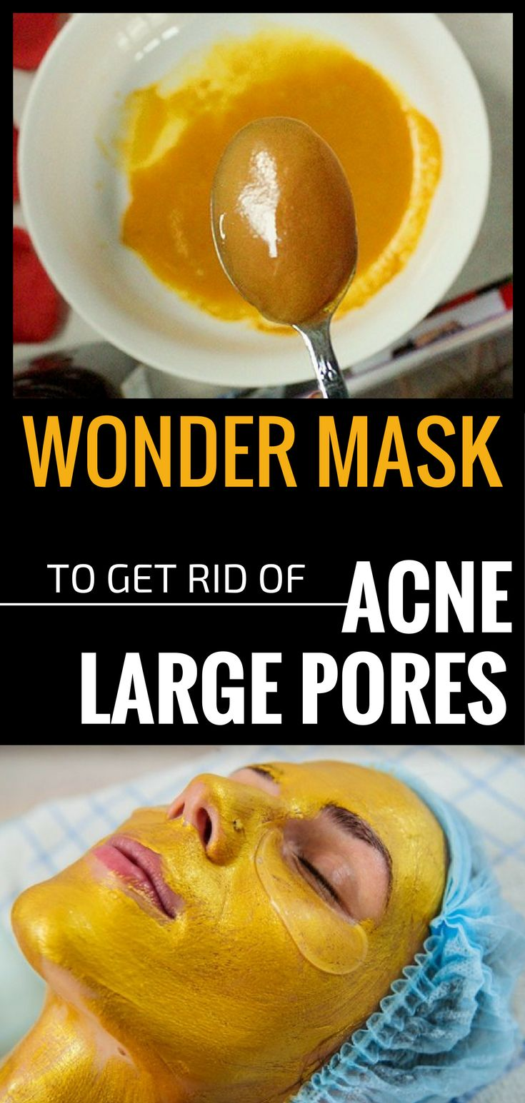Diy Face Masks Oily Skin Goes Hand In Hand With Acne Blackheads