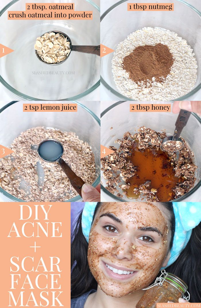 DIY Face Masks : This DIY face mask for acne & scars uses honey and